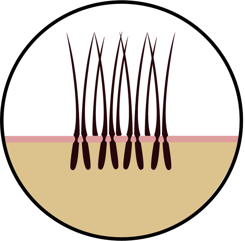 Das Haar ohne Streuhaar