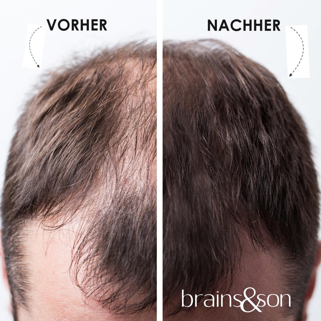 Streuhaar gegen Haarausfall